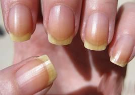 Solutions To Yellowing Fingernails Judy De Luca